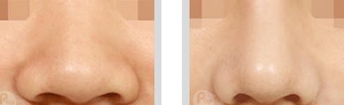 注射肉毒素缩小鼻头治疗效果图
