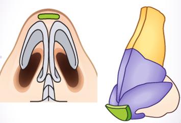 鼻头组织去除治疗方法手术示意图