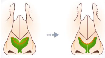 鼻翼软骨缝合治疗方法手术示意图
