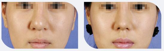 鼻翼软骨缝合治疗效果图