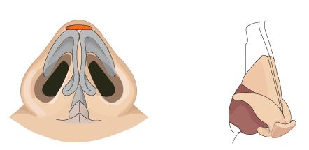 鼻尖移植软骨治疗方法手术示意图