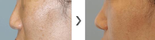 鼻尖移植软骨治疗效果图