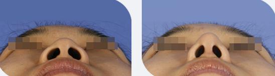 切开鼻孔法鼻翼缩小治疗效果图
