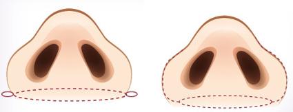 鼻孔聚集法鼻翼缩小治疗方法手术示意图