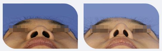 鼻孔聚集法鼻翼缩小治疗效果图
