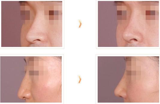 切除鼻中隔软骨治疗效果图