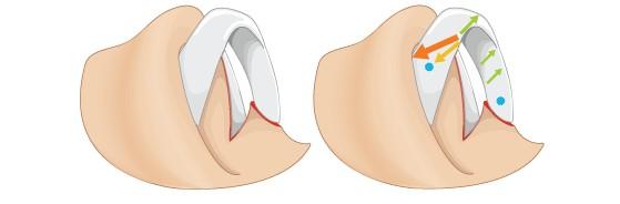 鼻翼软骨提升治疗方法手术示意图