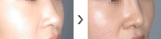 鼻翼软骨提升治疗效果图
