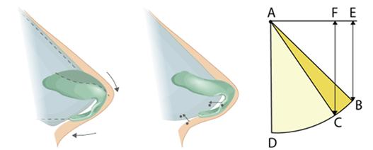 软骨整形矫正短鼻治疗方法手术示意图