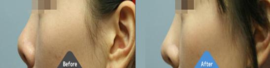 软骨整形矫正短鼻治疗效果图