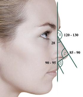 驼峰鼻矫正治疗方法手术示意图