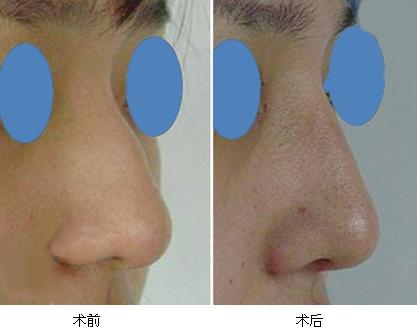 驼峰鼻矫正治疗效果图
