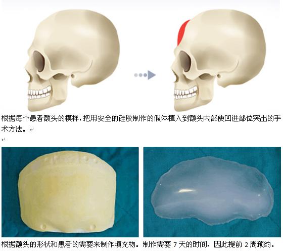 假体植入丰额头治疗方法手术示意图