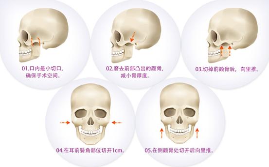 颧弓降低治疗方法手术示意图