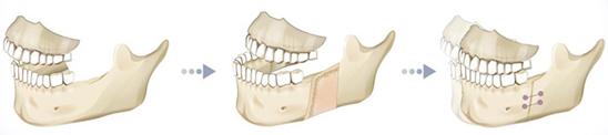 下颚前凸治疗方法手术示意图