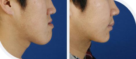 下颚前凸治疗效果图