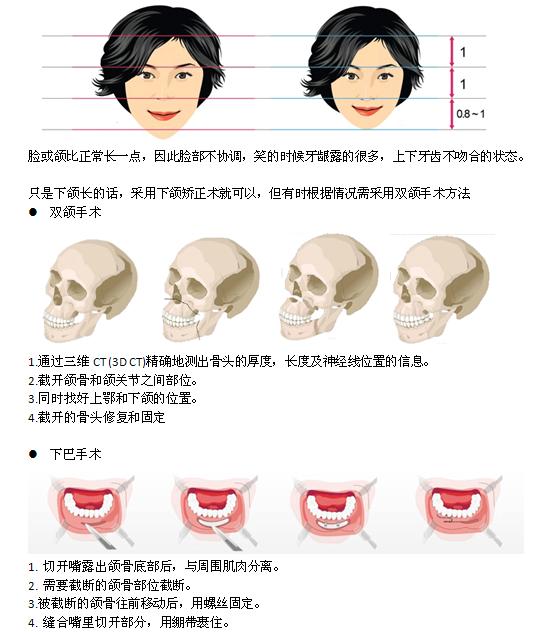 长脸治疗方法手术示意图