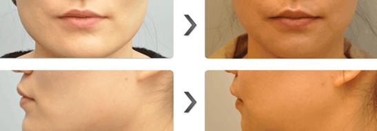 长脸治疗效果图