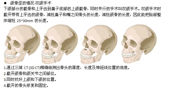 面部不对称治疗方法手术示意图