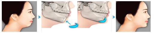 假体植入垫下巴治疗方法手术示意图