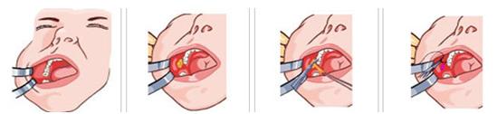 去颊脂垫瘦脸治疗方法手术示意图