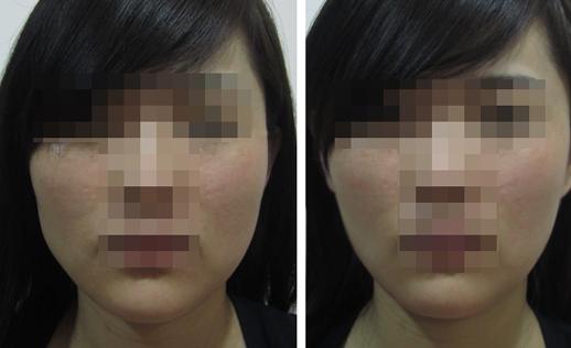 去颊脂垫瘦脸治疗效果图