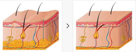 面部吸脂治疗方法手术示意图