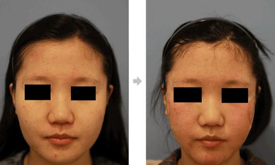 面部吸脂治疗效果图