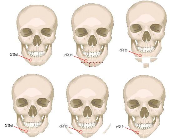 V-LINE瓜子脸手术治疗方法手术示意图