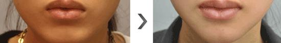 V-LINE瓜子脸手术治疗效果图