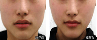 注射肉毒素痩脸治疗效果图