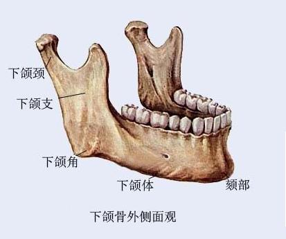 下颌角整形术治疗方法手术示意图