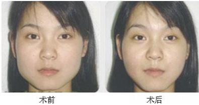 下颌角整形术治疗效果图