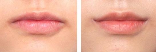 嘴角上提术治疗效果图