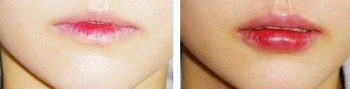 自体脂肪丰唇治疗效果图