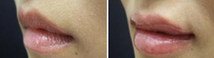 胶原蛋白注射丰唇治疗效果图