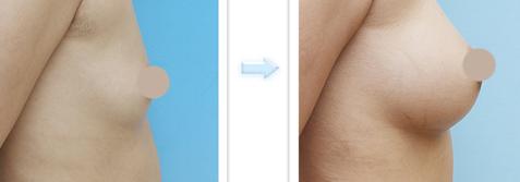假体隆胸治疗效果图