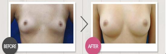 自体脂肪隆胸治疗效果图