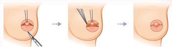 乳头凹陷矫正治疗方法手术示意图