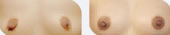 乳头凹陷矫正治疗效果图