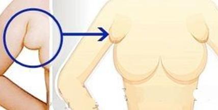 吸脂去副乳治疗方法手术示意图
