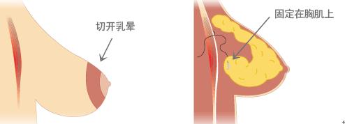 乳房下垂矫正治疗方法手术示意图