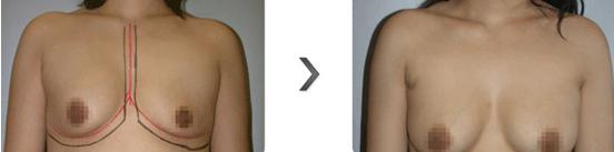 乳房下垂矫正治疗效果图