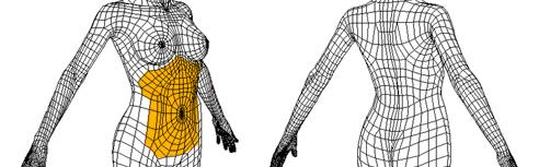 吸脂瘦腹部治疗方法手术示意图