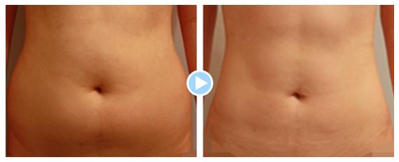 吸脂瘦腹部治疗效果图