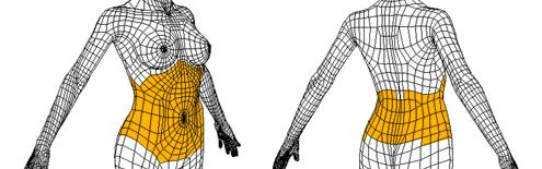 腹壁成形术治疗方法手术示意图