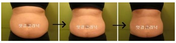 激光溶脂瘦腹部治疗效果图