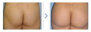 自体脂肪移植丰臀治疗效果图