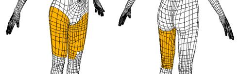 吸脂瘦大腿治疗方法手术示意图