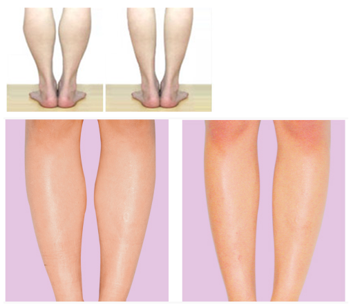 吸脂瘦小腿治疗效果图